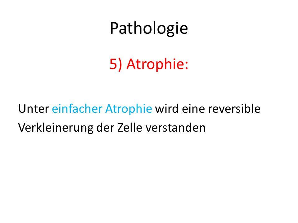 Pathologie 5) Atrophie: Unter einfacher Atrophie wird eine reversible Verkleinerung der Zelle verstanden