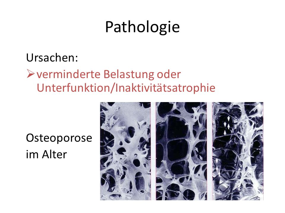 Pathologie Ursachen: verminderte Belastung oder Unterfunktion/Inaktivitätsatrophie Osteoporose im Alter