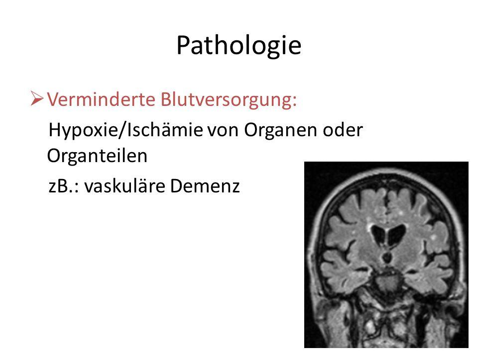 Pathologie Verminderte Blutversorgung: Hypoxie/Ischämie von Organen oder Organteilen zB.: vaskuläre Demenz
