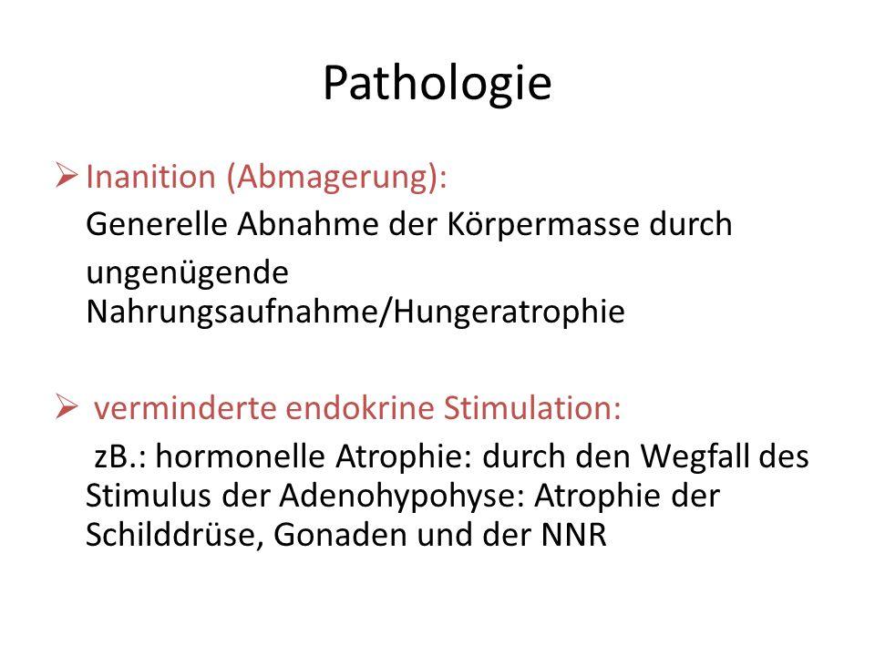 Pathologie Inanition (Abmagerung): Generelle Abnahme der Körpermasse durch ungenügende Nahrungsaufnahme/Hungeratrophie verminderte endokrine Stimulati