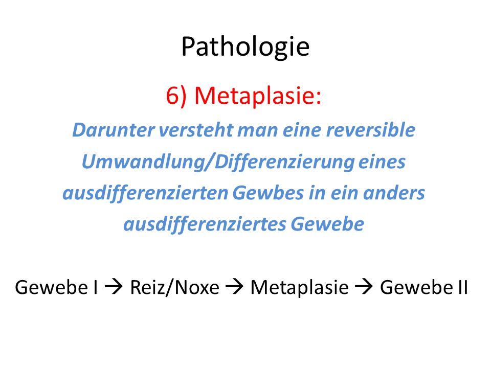 Pathologie 6) Metaplasie: Darunter versteht man eine reversible Umwandlung/Differenzierung eines ausdifferenzierten Gewbes in ein anders ausdifferenzi