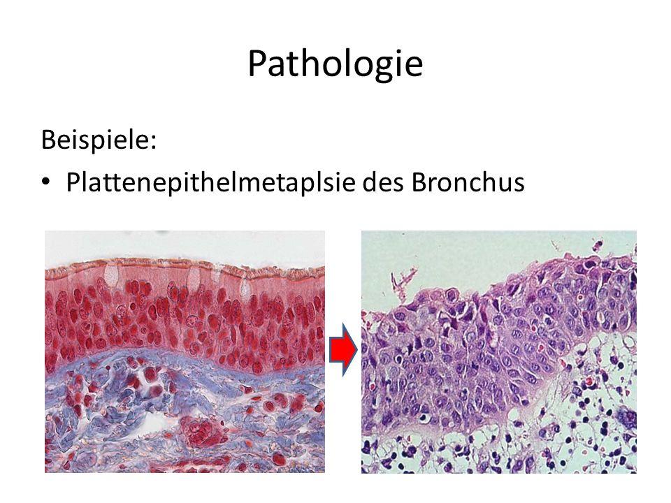 Pathologie Beispiele: Plattenepithelmetaplsie des Bronchus