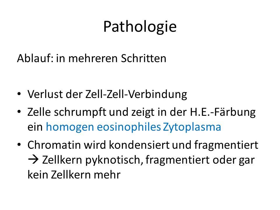 Pathologie Ablauf: in mehreren Schritten Verlust der Zell-Zell-Verbindung Zelle schrumpft und zeigt in der H.E.-Färbung ein homogen eosinophiles Zytop