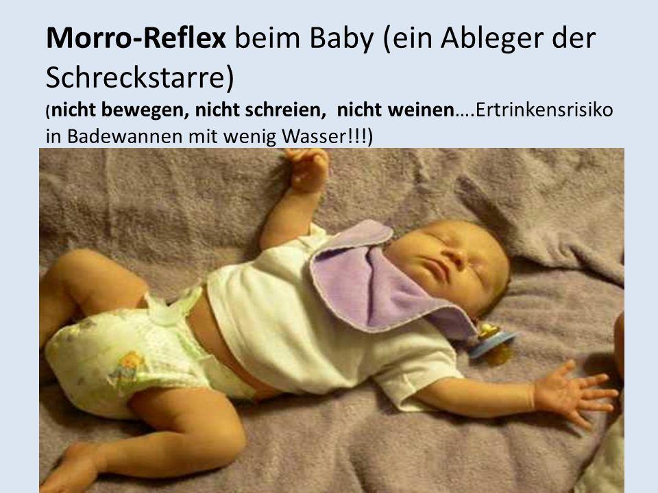 Morro-Reflex beim Baby (ein Ableger der Schreckstarre) ( nicht bewegen, nicht schreien, nicht weinen….Ertrinkensrisiko in Badewannen mit wenig Wasser!