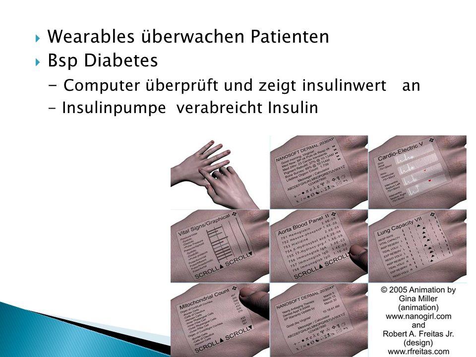 Wearables überwachen Patienten Bsp Diabetes - Computer überprüft und zeigt insulinwert an - Insulinpumpe verabreicht Insulin