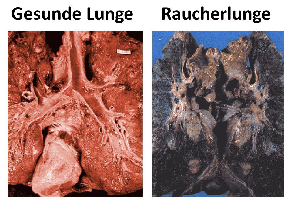 Gesunde LungeRaucherlunge