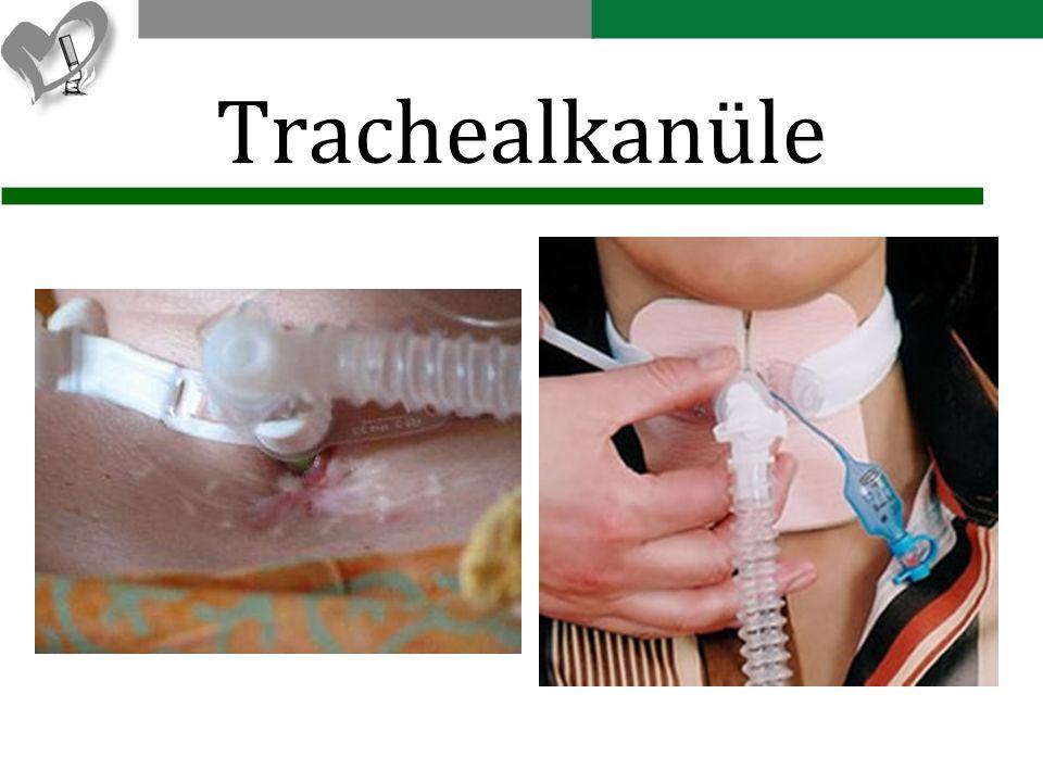 Trachealkanüle