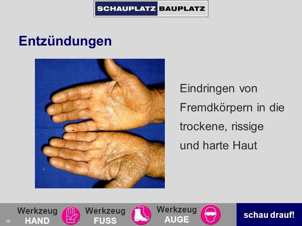 Werkzeug HAND Werkzeug FUSS Werkzeug AUGE schau drauf! 10 Entzündungen Eindringen von Fremdkörpern in die trockene, rissige und harte Haut