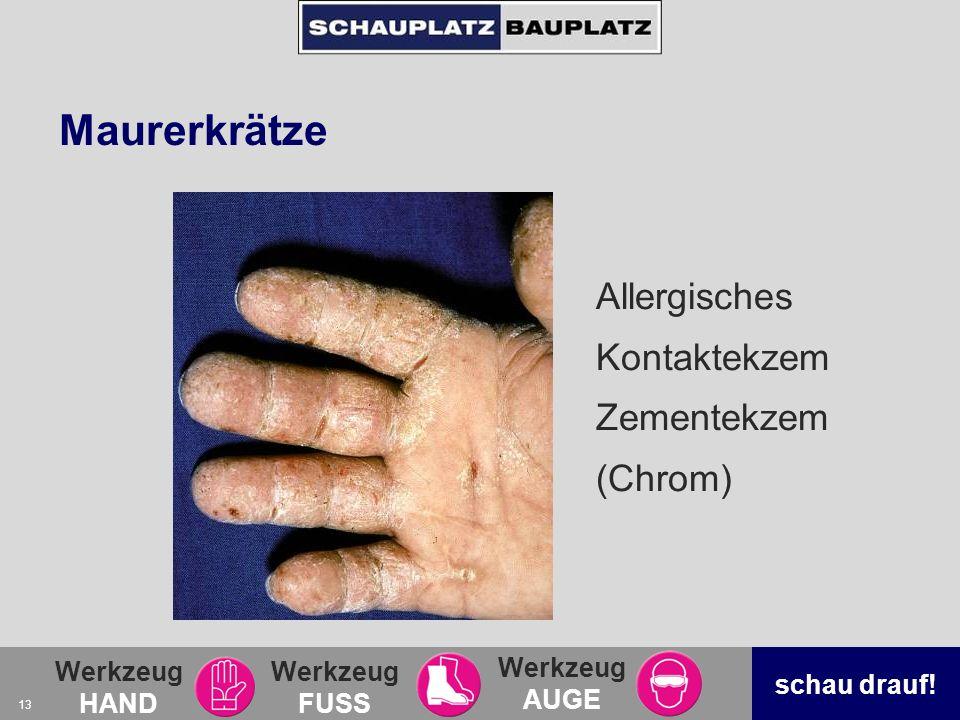 Werkzeug HAND Werkzeug FUSS Werkzeug AUGE schau drauf! 13 Maurerkrätze Allergisches Kontaktekzem Zementekzem (Chrom)