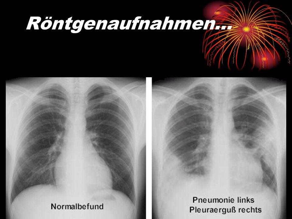 Opportunistische Pneumonie… …bei stark Immungeschwächten, wie z.B. durch Aids …durch Erreger, wie z.B. (Pilz) Pneumocystis carinii …durch Viren, wie z