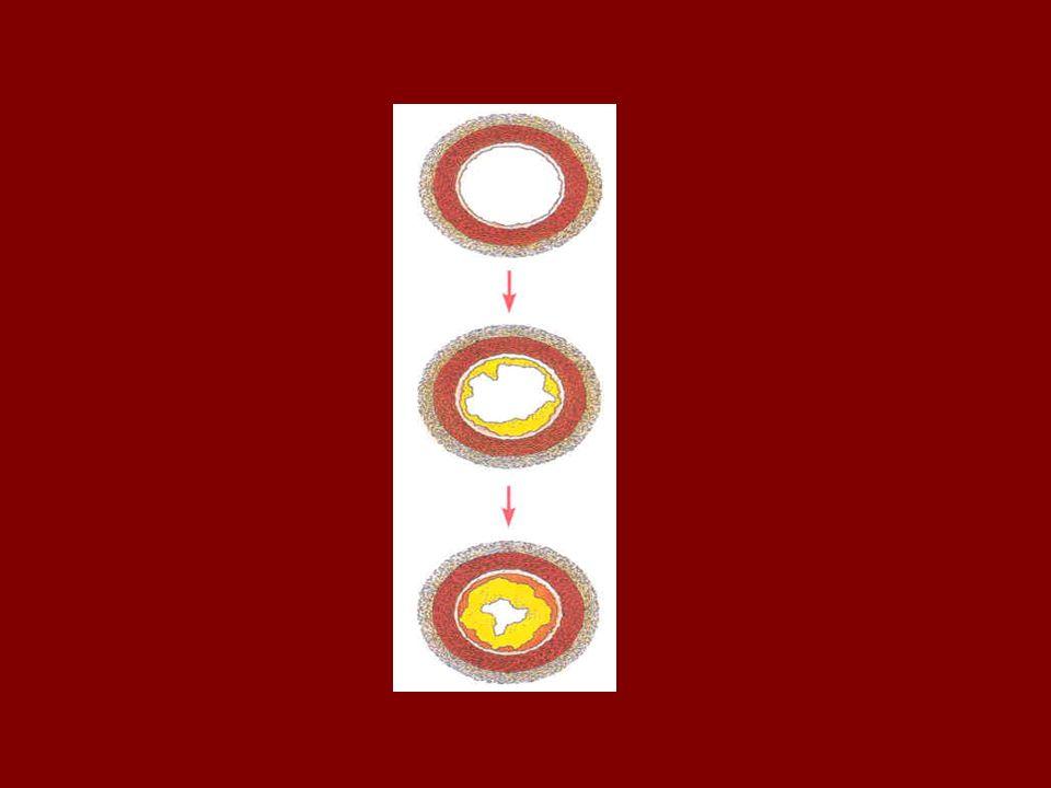 Ursachen: Für die Entwicklung der Arterienverkalkung gelten: - ein hoher Cholesterinspiegel - Bluthochdruck - Rauchen - Diabetes - und Übergewicht