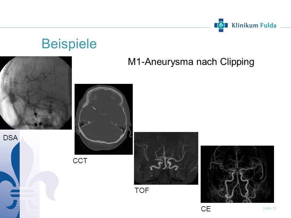 Seite 15 Beispiele M1-Aneurysma nach Clipping TOF CE CCT DSA