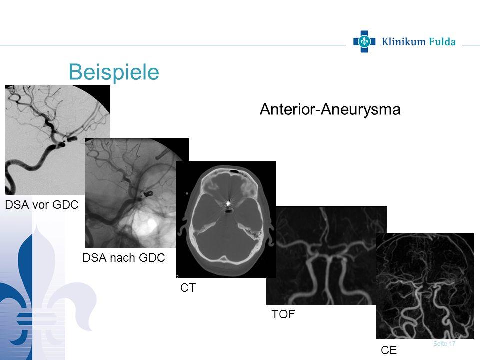Seite 17 Beispiele Anterior-Aneurysma DSA nach GDC CT TOF DSA vor GDC CE
