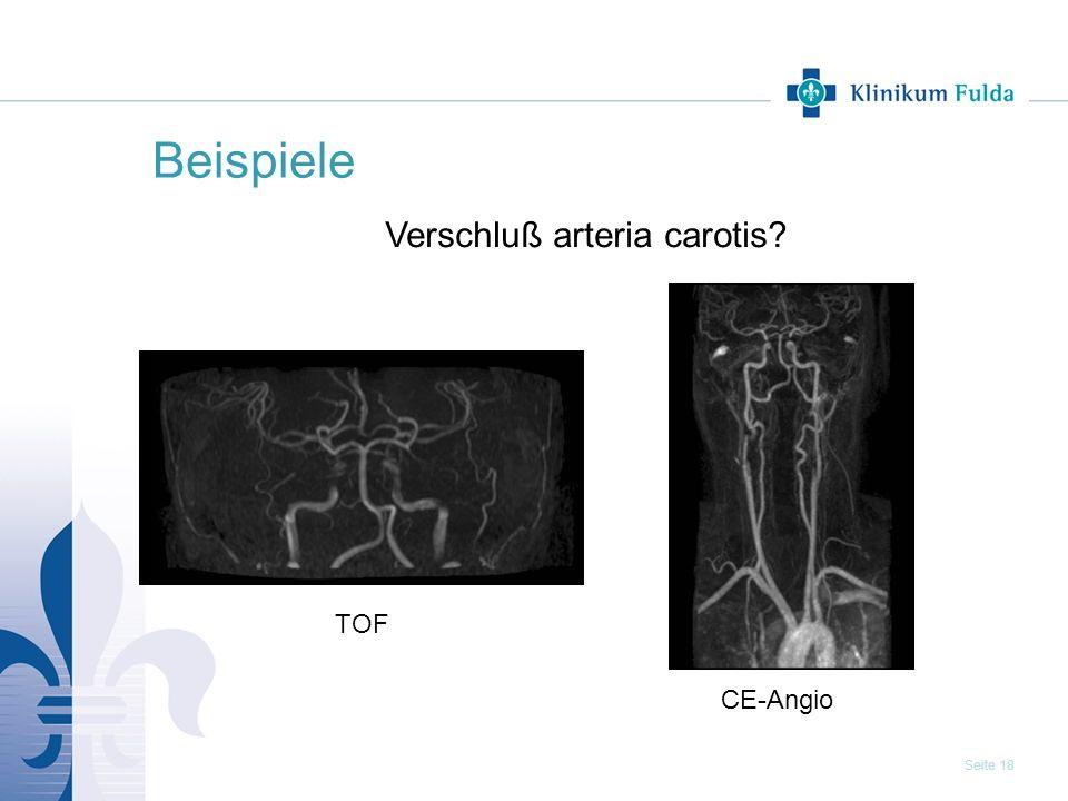Seite 18 Beispiele Verschluß arteria carotis? CE-Angio TOF