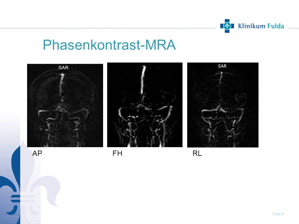 Seite 9 Phasenkontrast-MRA APFHRL