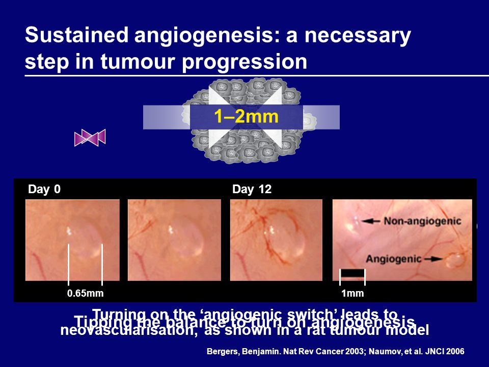 Sustained angiogenesis: a necessary step in tumour progression Turning on the angiogenic switch leads to neovascularisation, as shown in a rat tumour