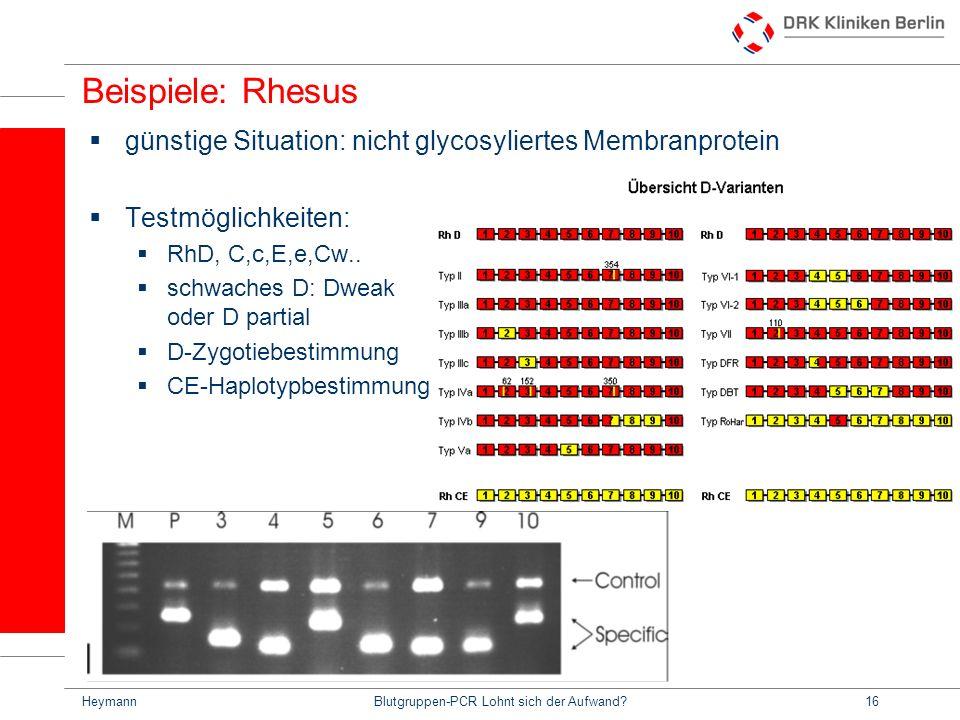 HeymannBlutgruppen-PCR Lohnt sich der Aufwand?16 Beispiele: Rhesus günstige Situation: nicht glycosyliertes Membranprotein Testmöglichkeiten: RhD, C,c,E,e,Cw..