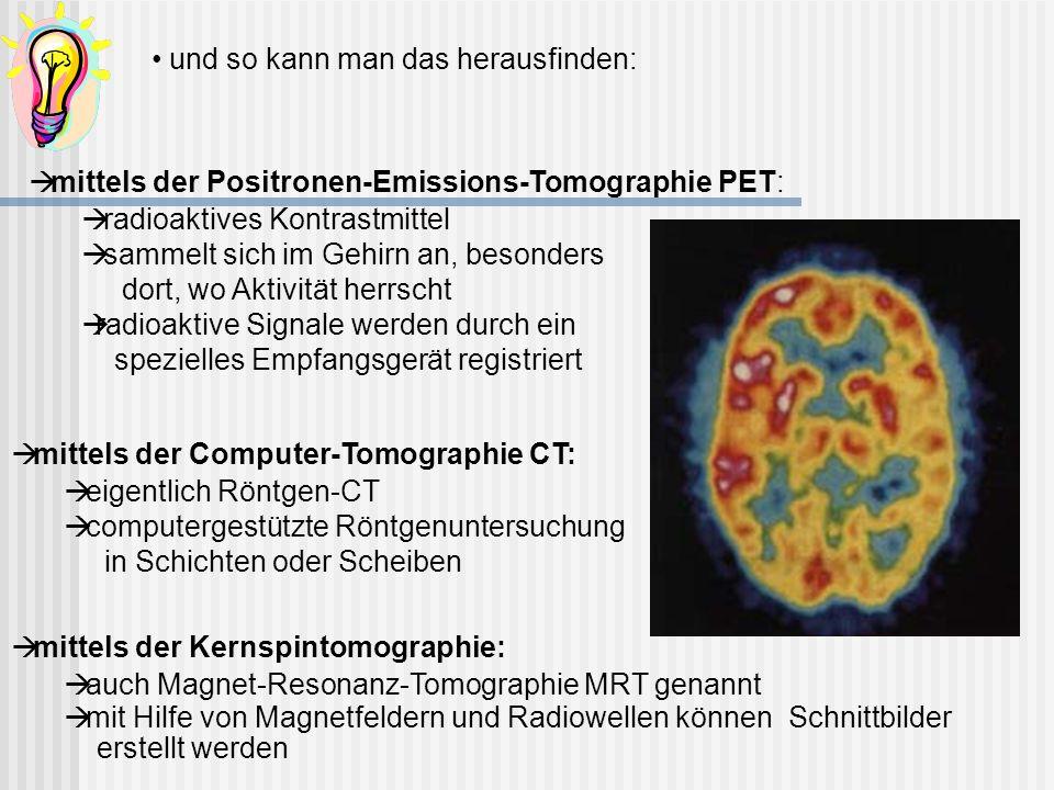 und so kann man das herausfinden: mittels der Positronen-Emissions-Tomographie PET: radioaktives Kontrastmittel sammelt sich im Gehirn an, besonders d