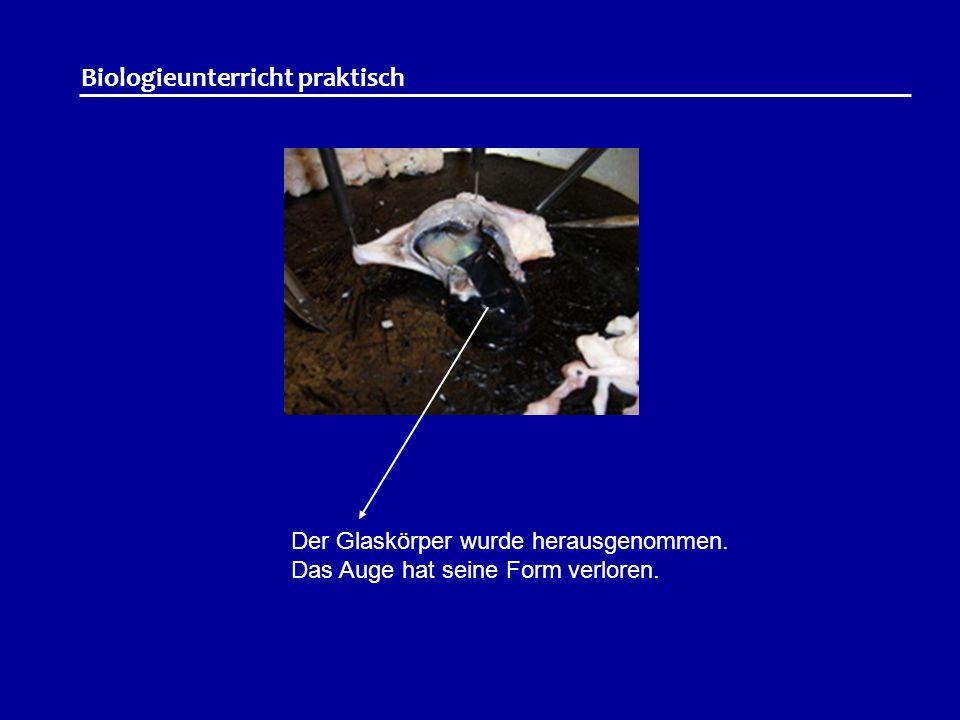 Biologieunterricht praktisch Der Glaskörper wurde herausgenommen. Das Auge hat seine Form verloren.