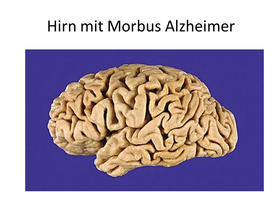 Hirn mit Morbus Alzheimer