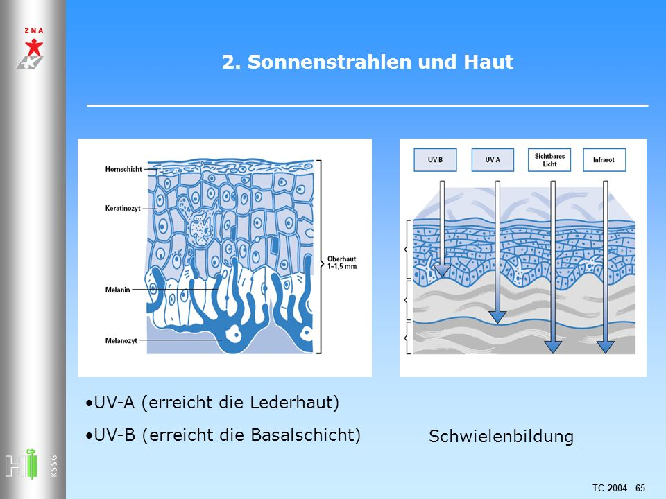 TC 2004 65 2. Sonnenstrahlen und Haut UV-A (erreicht die Lederhaut) UV-B (erreicht die Basalschicht) Schwielenbildung