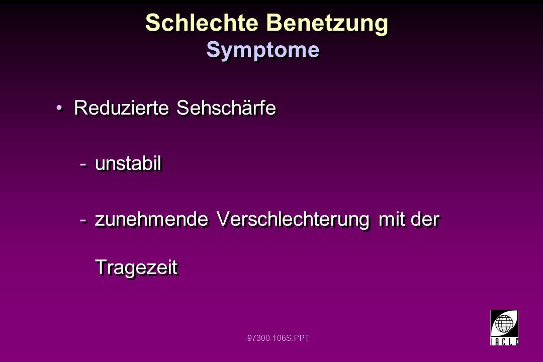 97300-106S.PPT Schlechte Benetzung Reduzierte Sehschärfe -unstabil -zunehmende Verschlechterung mit der Tragezeit Reduzierte Sehschärfe -unstabil -zunehmende Verschlechterung mit der Tragezeit Symptome