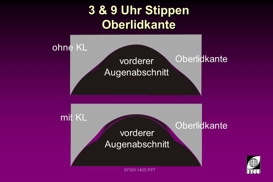 97300-140S.PPT 3 & 9 Uhr Stippen Oberlidkante vorderer Augenabschnitt vorderer Augenabschnitt Oberlidkante ohne KL mit KL