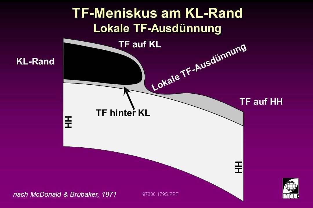 97300-179S.PPT TF-Meniskus am KL-Rand Lokale TF-Ausdünnung KL-Rand HH TF auf HH Lokale TF-Ausdünnung TF auf KL TF hinter KL HH nach McDonald & Brubaker, 1971