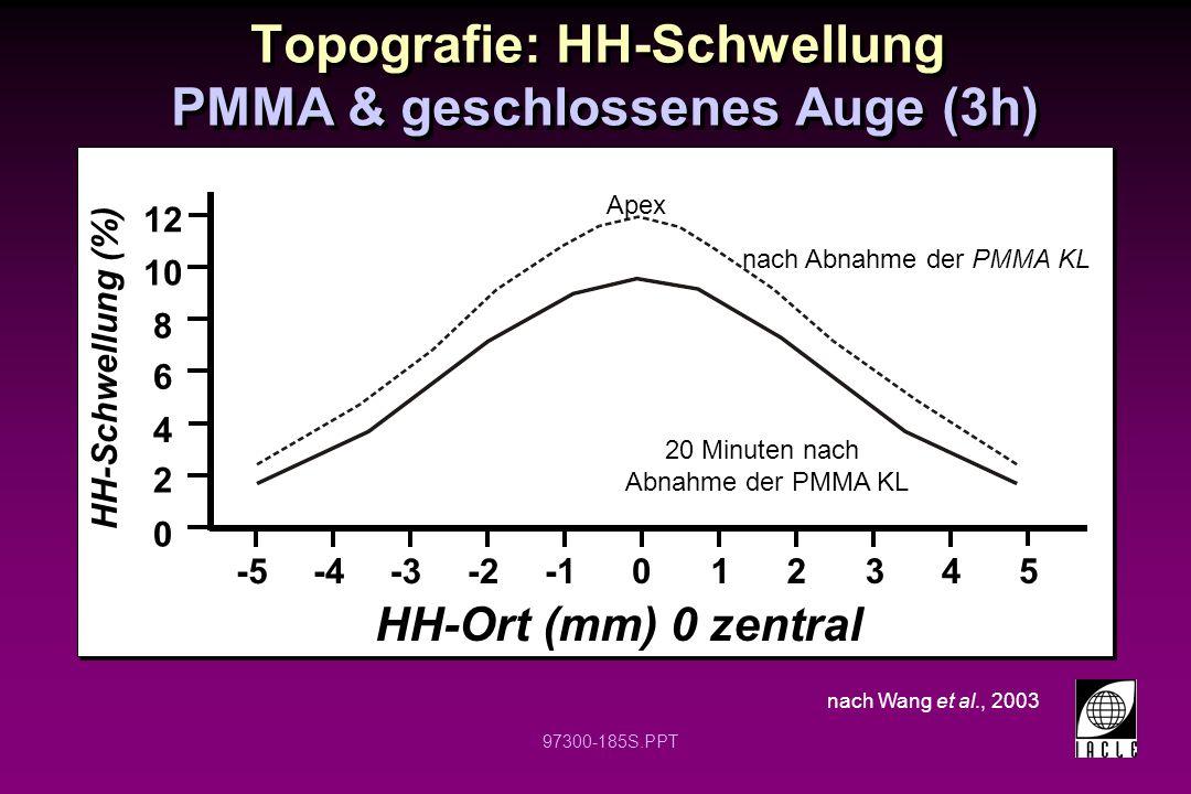 97300-185S.PPT Topografie: HH-Schwellung PMMA & geschlossenes Auge (3h) nach Wang et al., 2003 012345 -5-4-3-2 HH-Ort (mm) 0 zentral 0 2 4 6 8 10 12 HH-Schwellung (%) nach Abnahme der PMMA KL 20 Minuten nach Abnahme der PMMA KL Apex