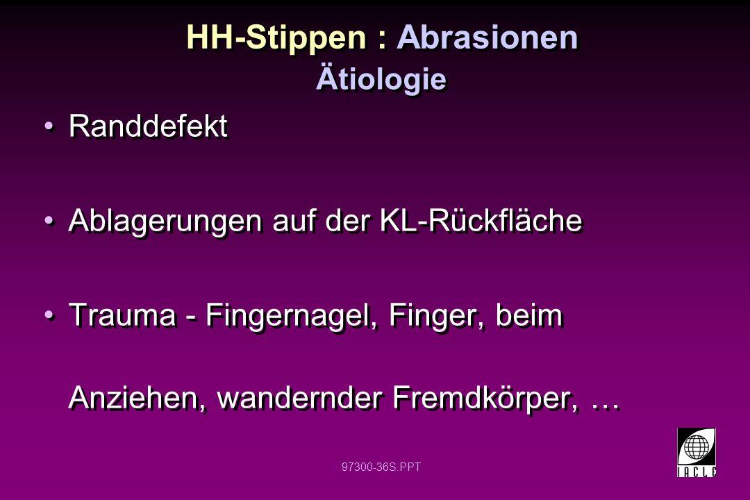 97300-36S.PPT HH-Stippen : Abrasionen Randdefekt Ablagerungen auf der KL-Rückfläche Trauma - Fingernagel, Finger, beim Anziehen, wandernder Fremdkörpe
