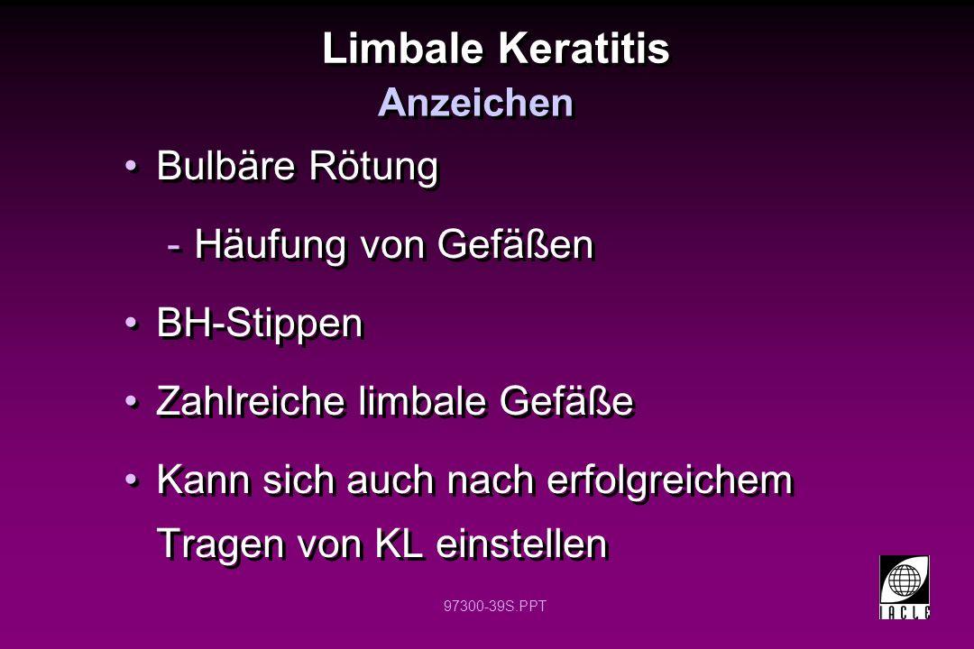 97300-39S.PPT Limbale Keratitis Bulbäre Rötung -Häufung von Gefäßen BH-Stippen Zahlreiche limbale Gefäße Kann sich auch nach erfolgreichem Tragen von
