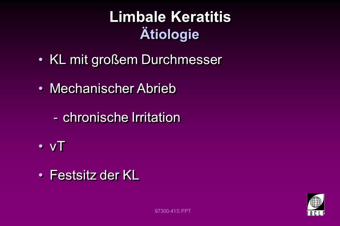 97300-41S.PPT Limbale Keratitis KL mit großem Durchmesser Mechanischer Abrieb -chronische Irritation vT Festsitz der KL KL mit großem Durchmesser Mech