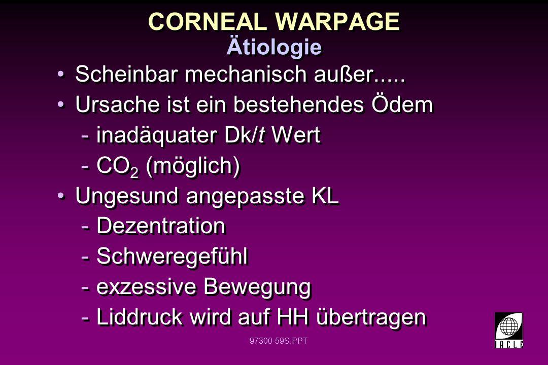 97300-59S.PPT CORNEAL WARPAGE Scheinbar mechanisch außer..... Ursache ist ein bestehendes Ödem -inadäquater Dk/t Wert -CO 2 (möglich) Ungesund angepas