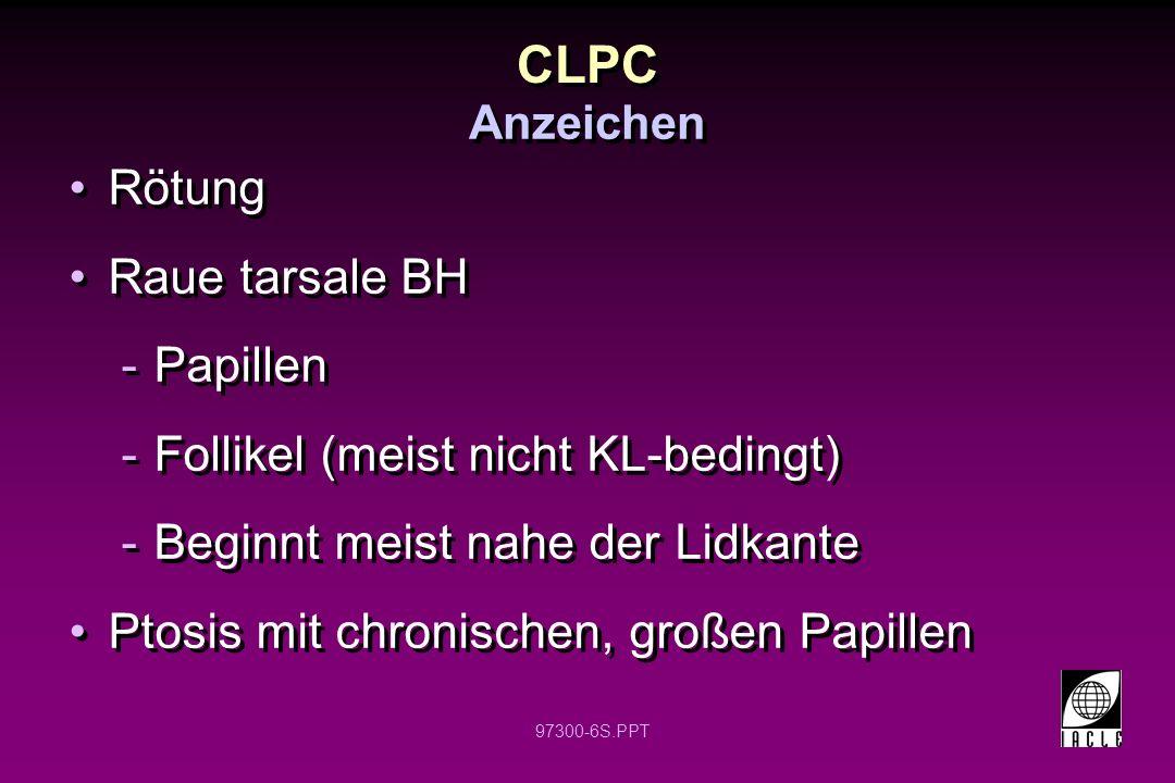 97300-6S.PPT CLPC Rötung Raue tarsale BH -Papillen -Follikel (meist nicht KL-bedingt) -Beginnt meist nahe der Lidkante Ptosis mit chronischen, großen Papillen Rötung Raue tarsale BH -Papillen -Follikel (meist nicht KL-bedingt) -Beginnt meist nahe der Lidkante Ptosis mit chronischen, großen Papillen Anzeichen