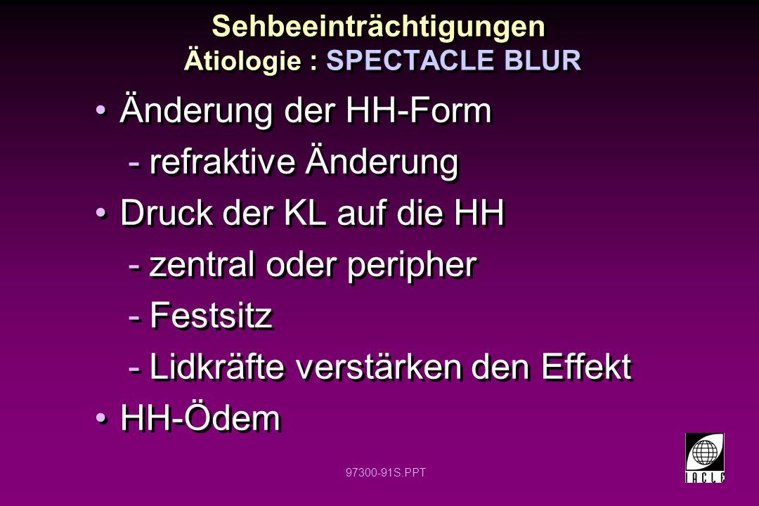 97300-91S.PPT Änderung der HH-Form -refraktive Änderung Druck der KL auf die HH -zentral oder peripher -Festsitz -Lidkräfte verstärken den Effekt HH-Ödem Änderung der HH-Form -refraktive Änderung Druck der KL auf die HH -zentral oder peripher -Festsitz -Lidkräfte verstärken den Effekt HH-Ödem Sehbeeinträchtigungen Ätiologie : SPECTACLE BLUR