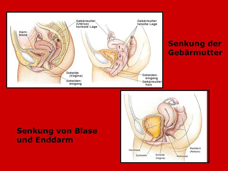 Senkung der Gebärmutter Senkung von Blase und Enddarm