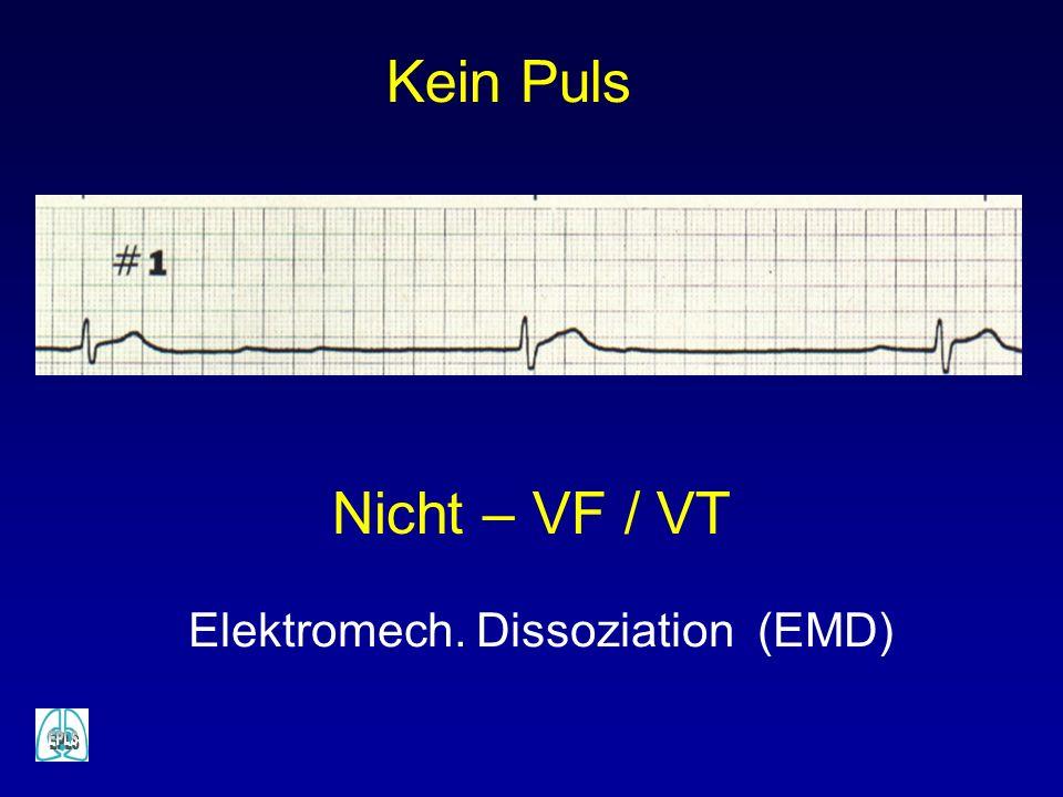 Elektromech. Dissoziation (EMD) Nicht – VF / VT Kein Puls
