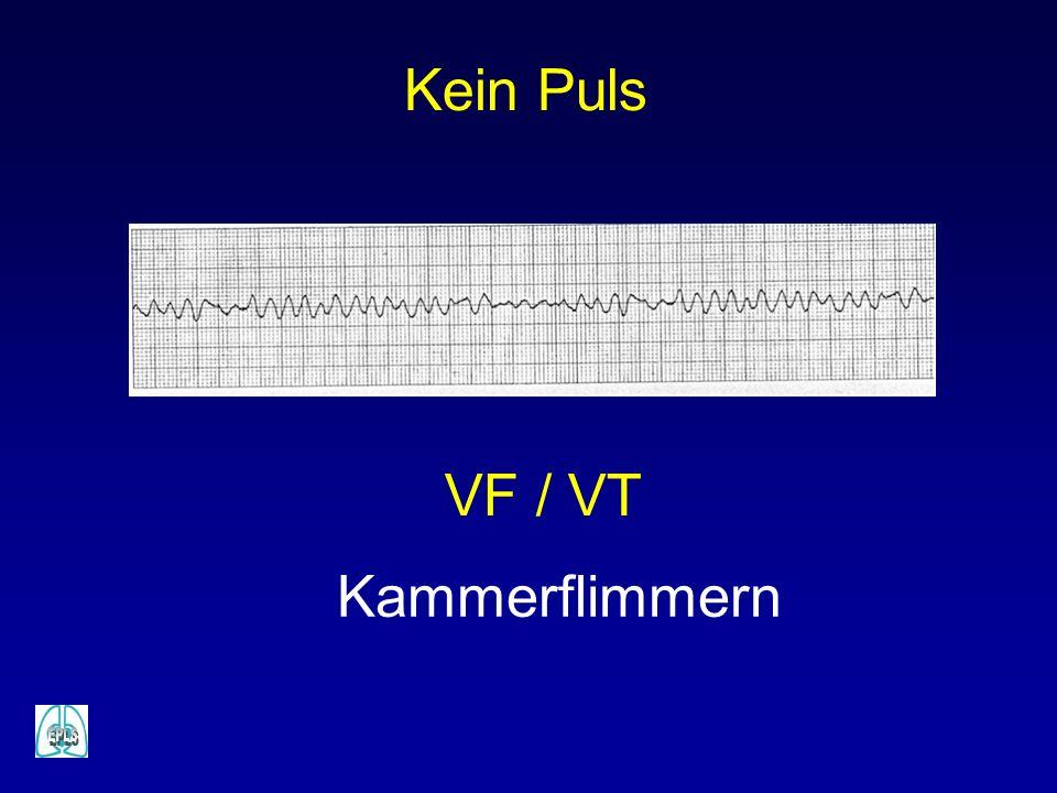 VF / VT Kammerflimmern Kein Puls