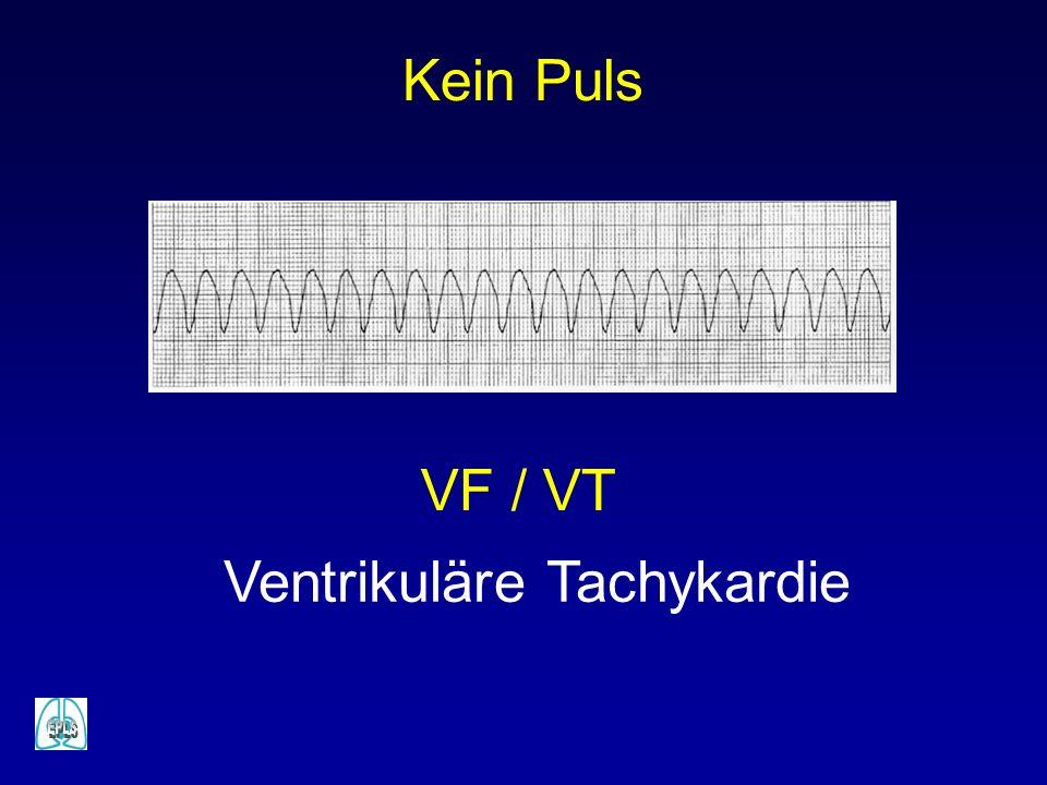 Ventrikuläre Tachykardie Kein Puls VF / VT