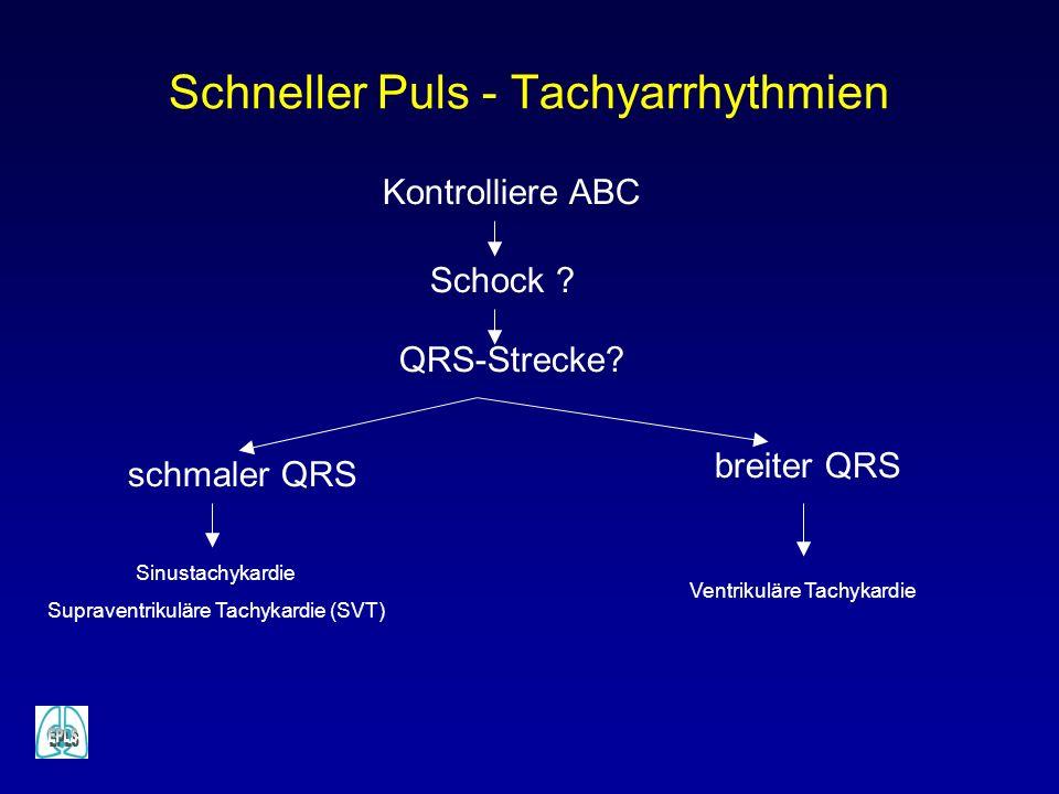 Schneller Puls - Tachyarrhythmien Kontrolliere ABC Schock ? QRS-Strecke? schmaler QRS breiter QRS Sinustachykardie Supraventrikuläre Tachykardie (SVT)