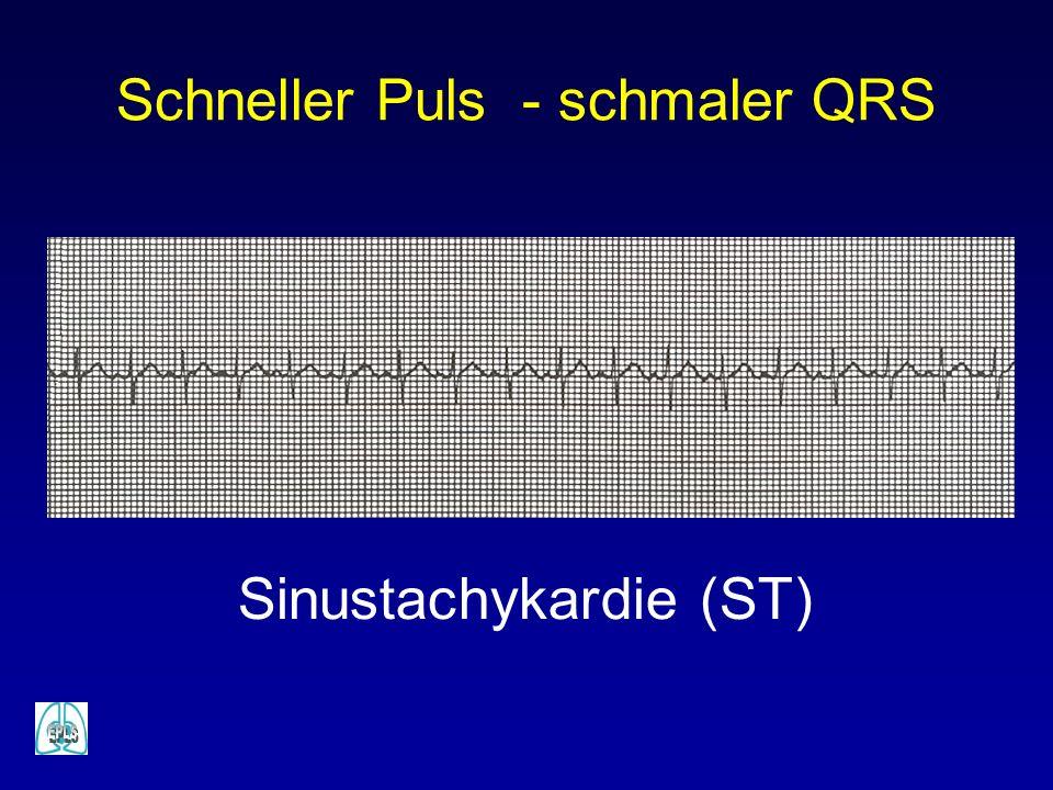 Schneller Puls - schmaler QRS Sinustachykardie (ST)