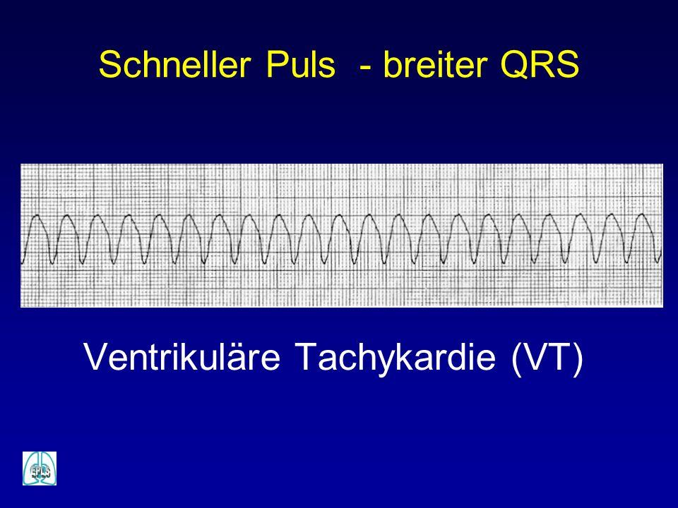 Schneller Puls - breiter QRS Ventrikuläre Tachykardie (VT)