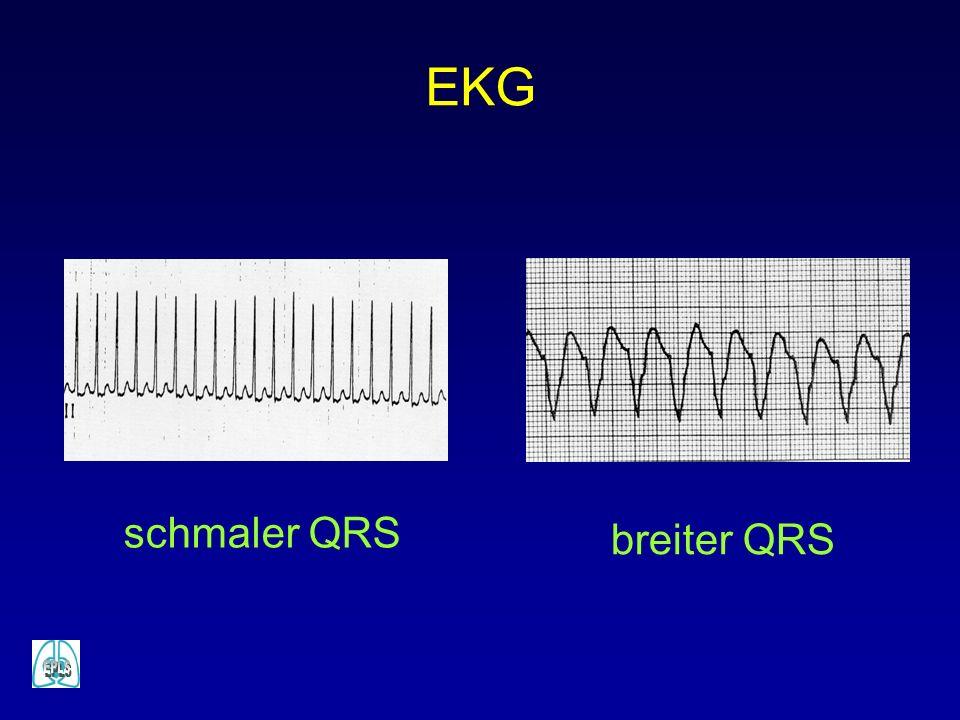 breiter QRS schmaler QRS EKG
