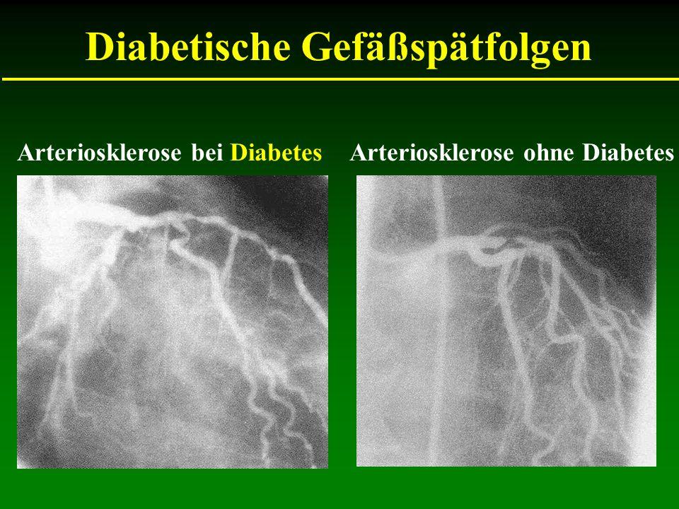 Arteriosklerose bei Diabetes Diabetische Gefäßspätfolgen Arteriosklerose ohne Diabetes