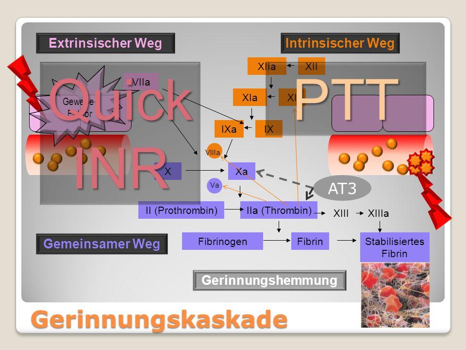 Gerinnungskaskade XXa Va II (Prothrombin)IIa (Thrombin) XIIIXIIIa Stabilisiertes Fibrin FibrinogenFibrin Gemeinsamer Weg Extrinsischer WegIntrinsische