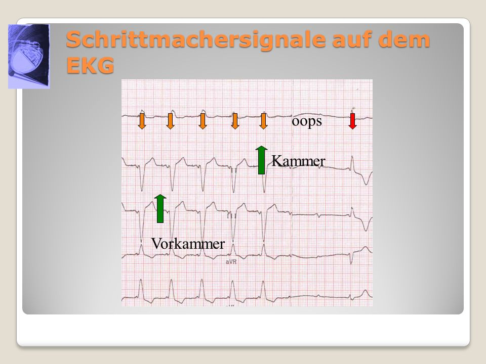 Schrittmachersignale auf dem EKG oops Kammer Vorkammer