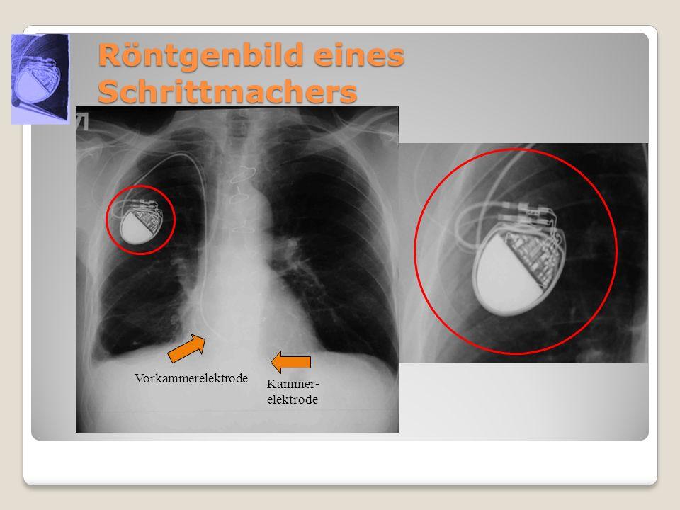 Röntgenbild eines Schrittmachers Vorkammerelektrode Kammer- elektrode