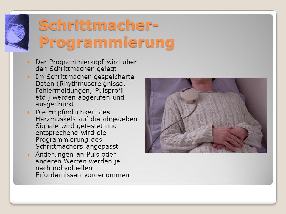 Schrittmacher- Programmierung Der Programmierkopf wird über den Schrittmacher gelegt Im Schrittmacher gespeicherte Daten (Rhythmusereignisse, Fehlerme