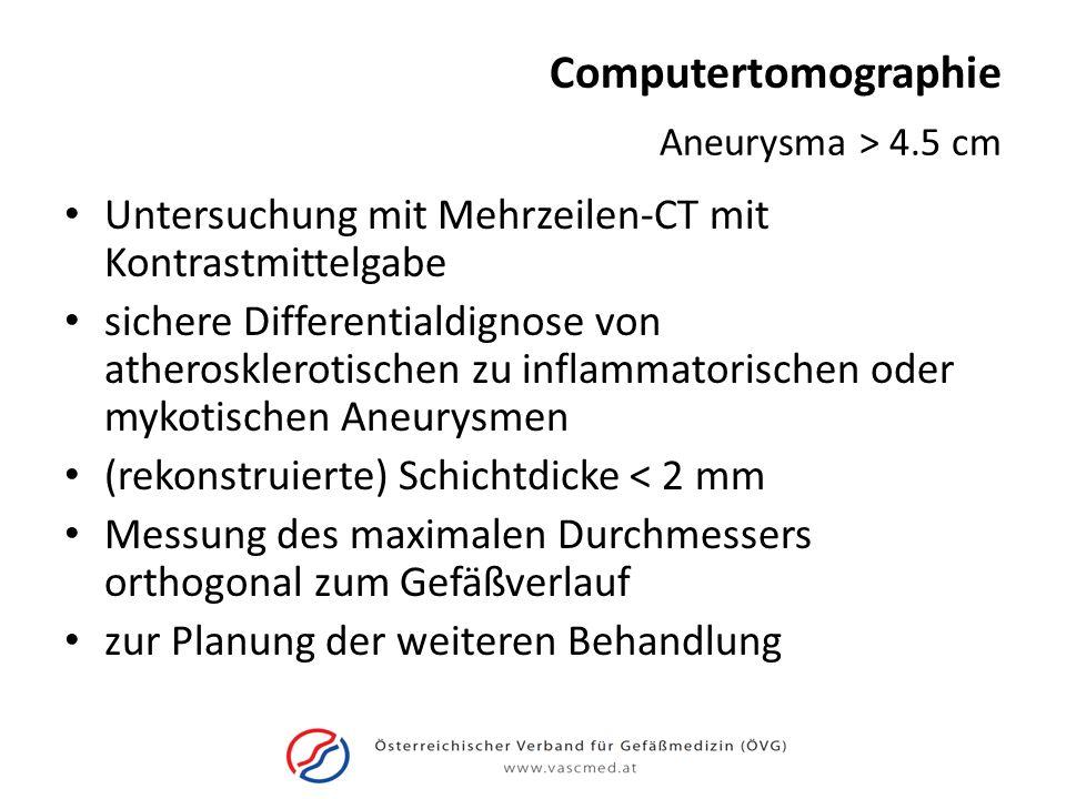Computertomographie Untersuchung mit Mehrzeilen-CT mit Kontrastmittelgabe sichere Differentialdignose von atherosklerotischen zu inflammatorischen ode