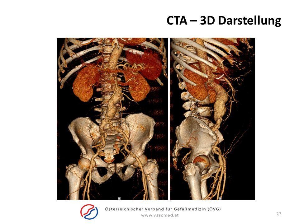 CTA – 3D Darstellung 27